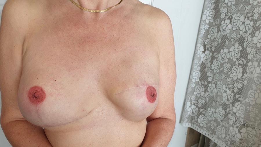 La reconstruction d'aréole mammaire par dermopigmentation est remboursée à 100% lorsqu'elle est réalisée par un professionnel de santé. (Cabinet DermoClinic)