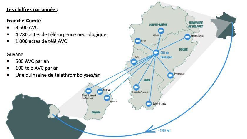 100 actes de télé-AVC sont réalisés chaque année en Guyane en collaboration avec le CHU de Besançon, qui est également un centre-expert pour la Franche-Comté. (Infographie CHU de Besançon)